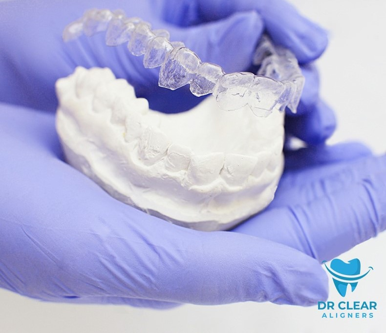 How to care for your Retainers?