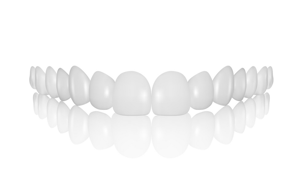 What is Snap-On-Veneers?