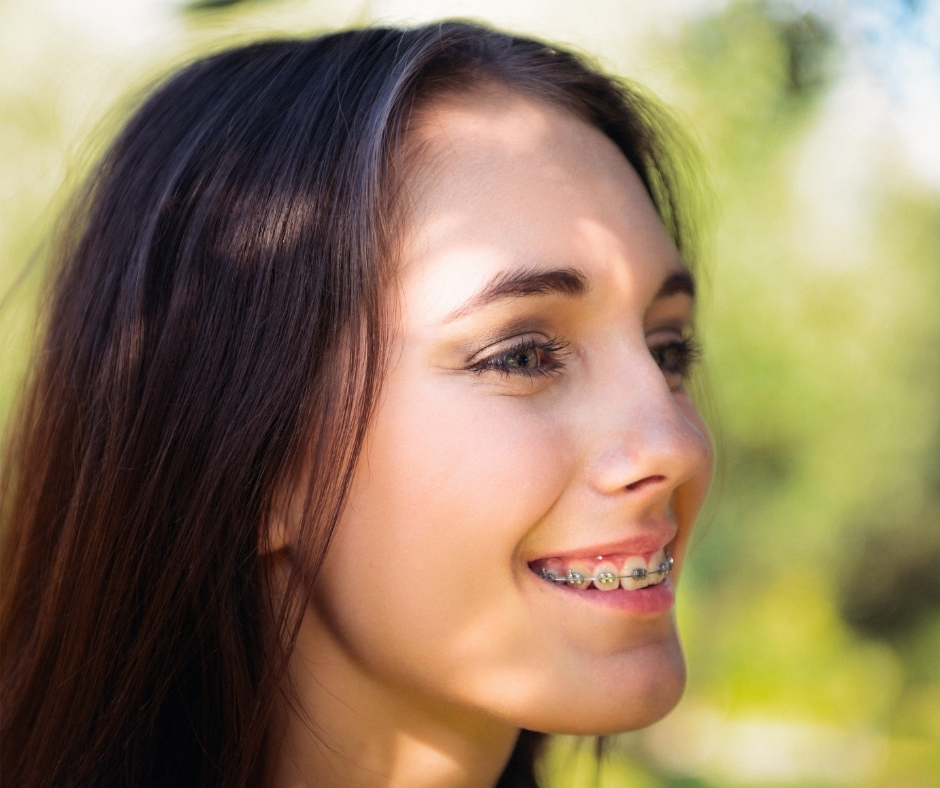 Can I straighten my teeth at any age?